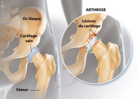 ORTHO -Arthrose hanche - Copie